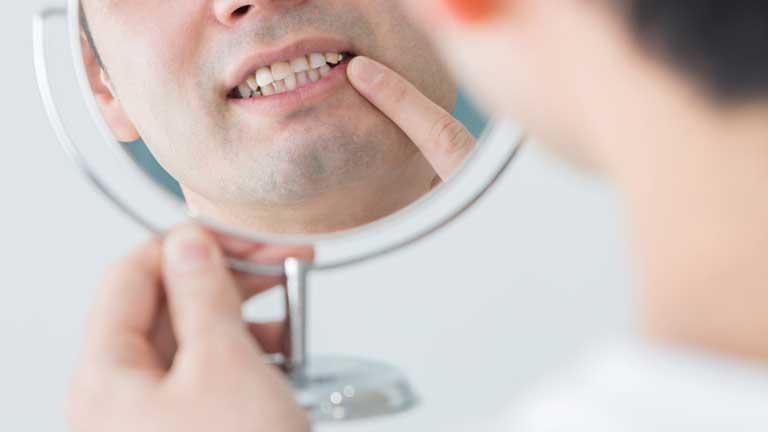 虫歯や歯周病が原因に?!歯をボロボロにする5つの悪習慣