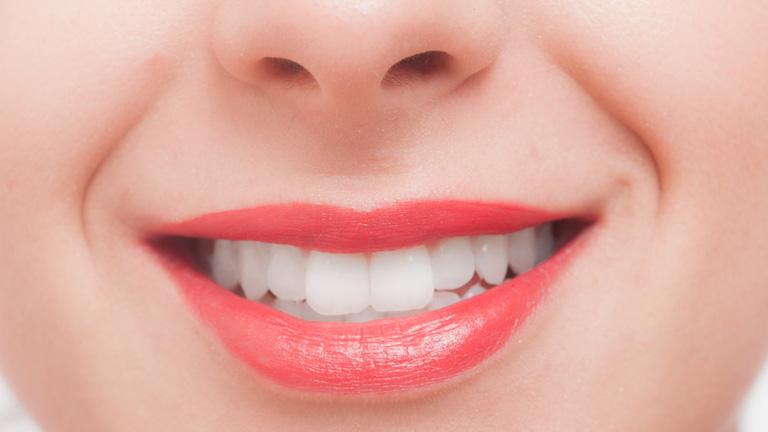 歯を白くするために知っておきたいコト・歯の黄ばみになる食べ物ってなに?